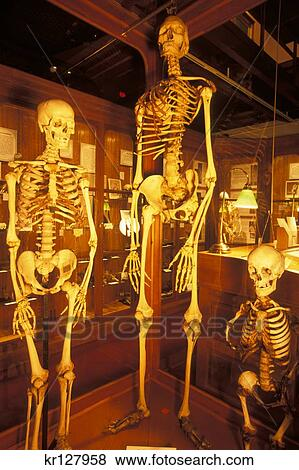 Pictures Of Philadelphia Pa Normal Giant And Dwarf Human Skeletons