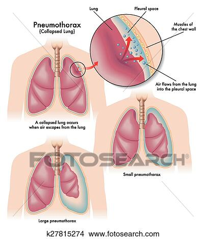 Pneumothorax Clip Art