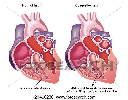 Free Heart Failure Clipart