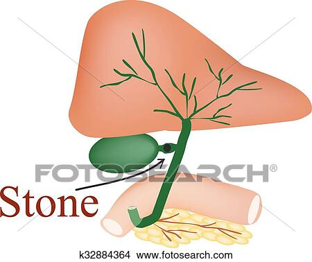 Clipart Of Stone Bile Duct Gallbladder Duodenum Pancreas Bile