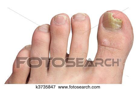 Dopo che unghie di fungo non crescono