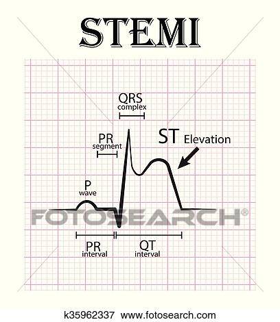 clip art ecg  de  c    elevaci u00f3n  infarto del miocardio Black and White Heart Clip Art Heart Beat Line Clip Art