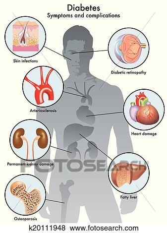 Clip Art - diabetes (symptoms and complication. Fotosearch - Search Clipart, Illustration Posters, Drawings, and EPS Vector Graphics Images