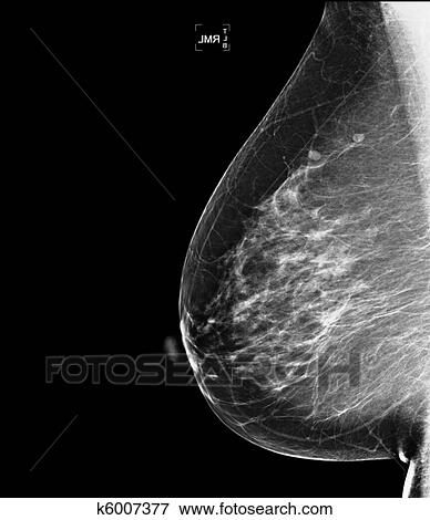Image of mammogram breast