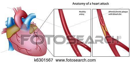 写真素材・動画素材・イラスト素材クリップアート - 解剖学, の, 心臓発作
