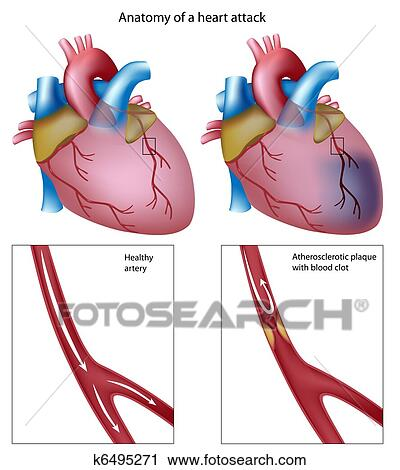 clipart of heart attack eps8 k6495271 search clip art rh fotosearch com anatomy clip art images anatomy clipart images