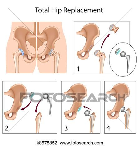 Total Hip Replacement Clip Art
