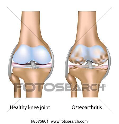 Arthritis Specialists In Idaho