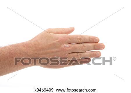 banque de photographies psoriasis sur les mains et sous ongles k9459409 recherchez des. Black Bedroom Furniture Sets. Home Design Ideas