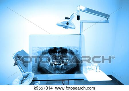 Stock photo of dental x ray k9557314 search stock images - Lecteur blue ray mural ...