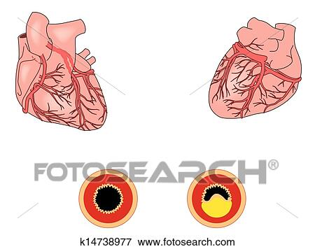 literature review on coronary heart disease Pathophysiology of coronary heart disease: a brief review or cited in the literature emerging evidence strongly suggests that coronary heart disease.