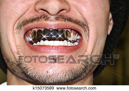 Permanent white gold teeth