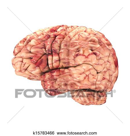 Side View Anatomy Anatomy Brain Side View