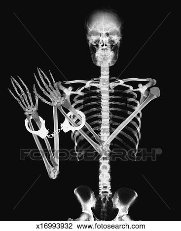 Clip Art of x-ray image of a person wearing handcuffs x16993932 ...