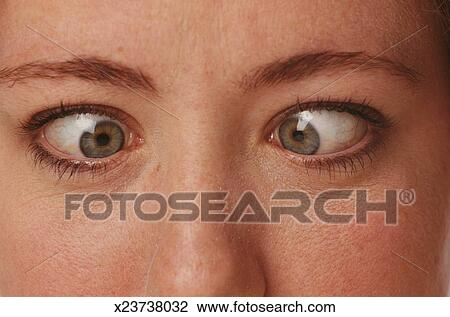 Stock Photo of Cross Eyed Woman x23738032 - Search Stock ...