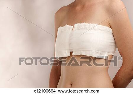Stock Photo Of Female Breasts Bandaged After Surgery X12100664