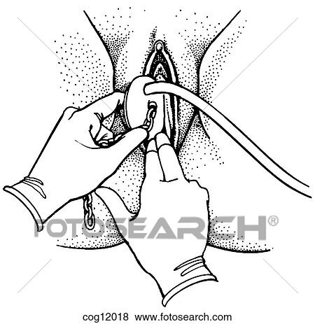 Stock Illustration of Instrumental delivery, outlet vacuum ...