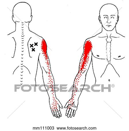 Drawing of Infraspinatus m., trigger points mm111003 ...