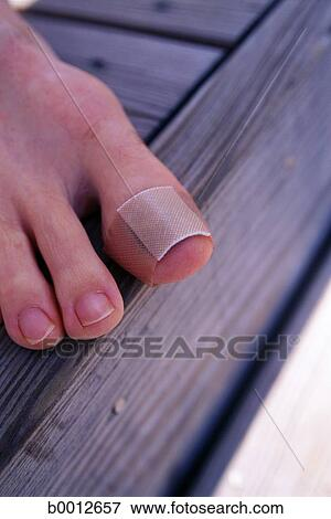picture of bandage barefoot boy caucasian close up foot injury b0012657 search stock. Black Bedroom Furniture Sets. Home Design Ideas