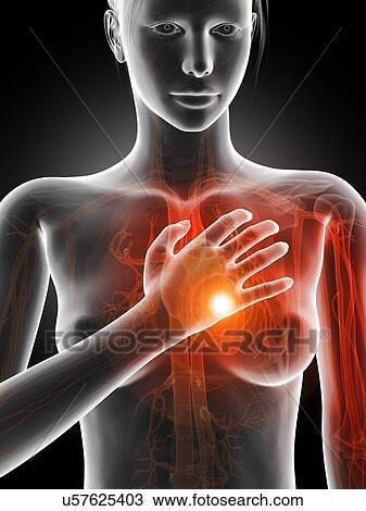 Dessin coeur humain attaque illustration u57625403 - Dessin coeur humain ...