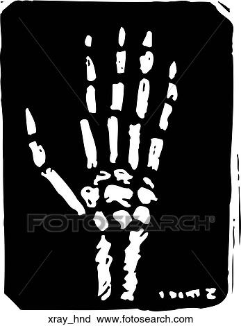 clipart of x ray hand xray hnd search clip art illustration rh fotosearch com radiography clipart x ray clip art free