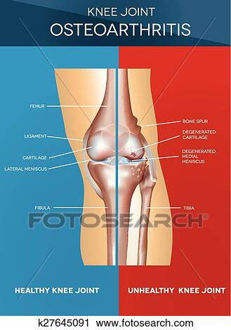 Clipart of Osteoarthritis and normal joint k27645091 - Search Clip ...