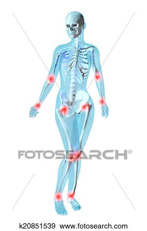 Stock Illustration Of Female Anatomy Joint Ache K20851539 Search