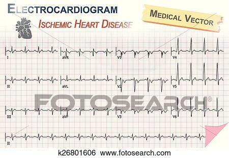 Clip Art - electrocardiograma, (, ecg, ekg, ), de, ischemic ...