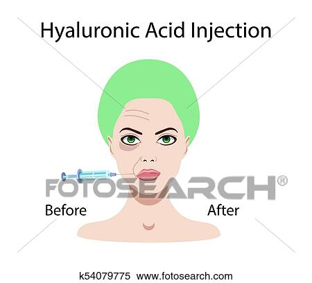 Hyaluronic acid injection, before and affect, vector illustration Clipart