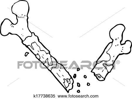 Clipart - gros, gebrochener knochen, karikatur k17738635 - Suche ...