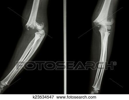 Bild - supracondylar, oberarmknochen, knochenbrüche k23534547 ...