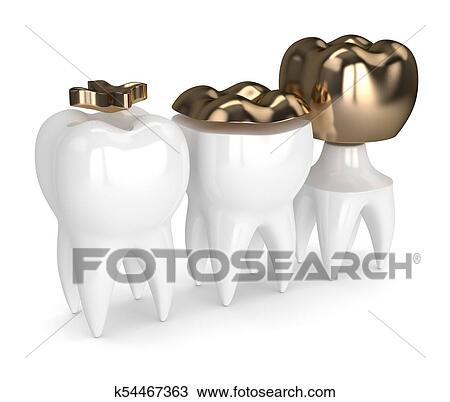 3d Render Of Teeth With Different Types Of Dental Gold Filling Drawing K54467363 Fotosearch