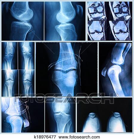 Foto - rodilla, médico, exam:, radiografía, y, mri escudriña ...
