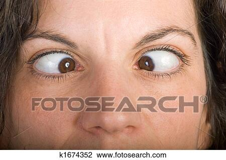 أحول العينين Closeup ألبوم الصور K1674352 Fotosearch