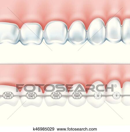 Clip Art - dientes humanos, con, fierros, conjunto k46985029 ...