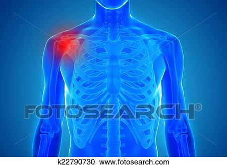 Stock Photography Of Anatomy Of Human Joints Injury Concept