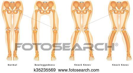 Bandy-legs Clip Art | k35235569 | Fotosearch