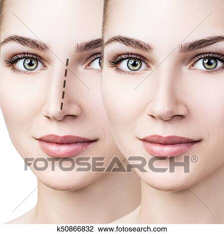 Clipart Femme Nez Before And After Chirurgie Cosmetique