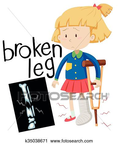 clipart of girl with broken leg and x ray film k35038671 search rh fotosearch com broken leg cartoon clipart broken leg clipart free