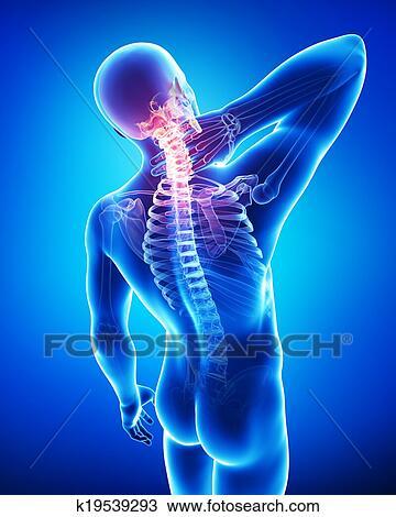 Dibujo - anatomía, de, macho, dolor de cuello, en, azul k19539293 ...