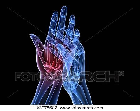 X,ray hands , arthritis Drawing