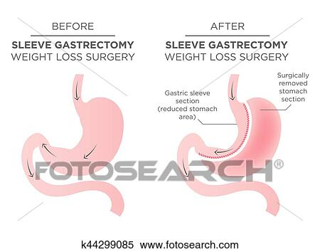 Clipart Of Stomach Staple Bariatric Surgery Resulting In 1 4 Of The