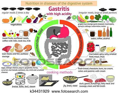 Infographics Proper Nutrition Gastritis Clip Art K34431929 Fotosearch