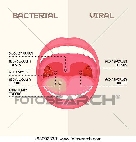 throat bacterial and viral infection tonsils inflammation
