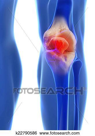 Colección de ilustraciones - rodilla humana, anatomía k22790586 ...
