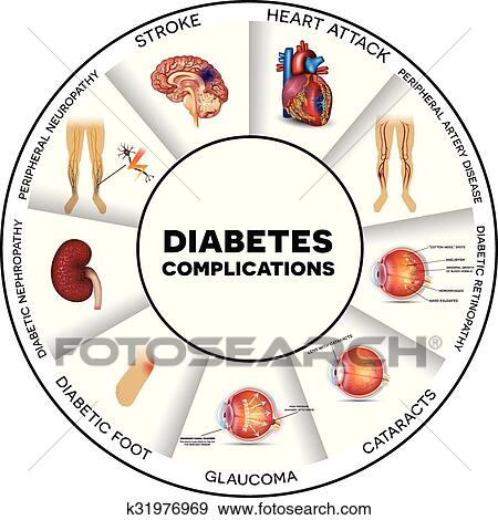 diabetes complicaties