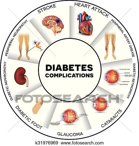 clip art of diabetes complications k31976969 search clipart rh fotosearch com diabetes clipart free diabetes clipart free