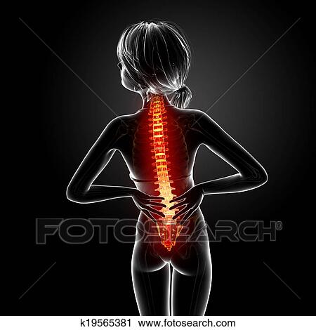 Clipart of Female back pain anatomy k19565381 - Search Clip Art ...