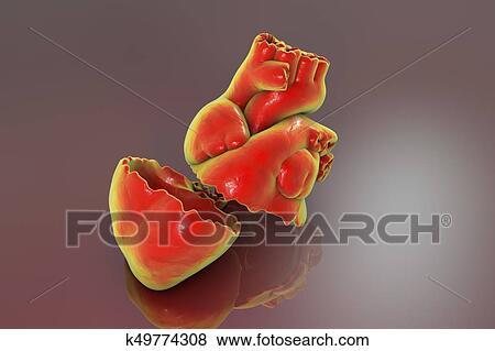 Stock Illustration Of Realistic Broken Heart Separation And Divorce