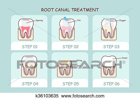 Cartoon tooth root canal treatment Clipart